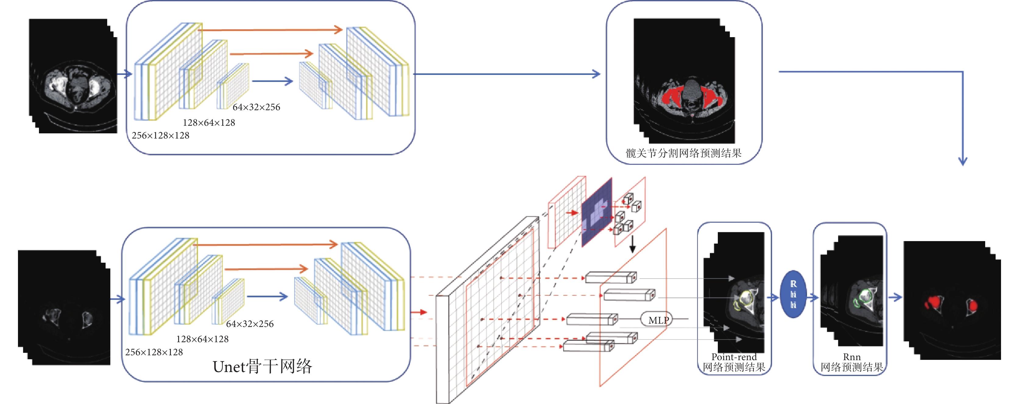 中国医学信息学杂志_人工智能辅助全髋关节置换术三维规划系统的研发及临床应用 ...